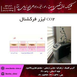 لیزر فرکشنال CO2