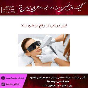 لیزر درمانی در رفع مو های زائد